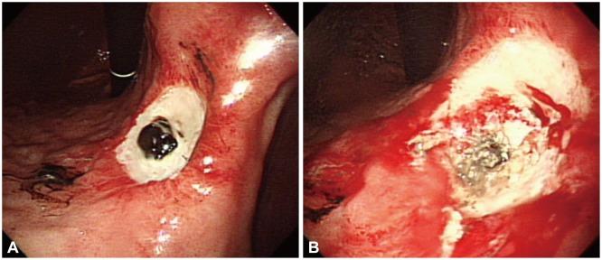 Endoscopic Management of Tumor Bleeding from Inoperable ...